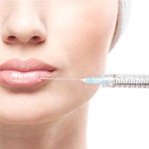 Hyarulonzuur Filler behandeling (injectables)